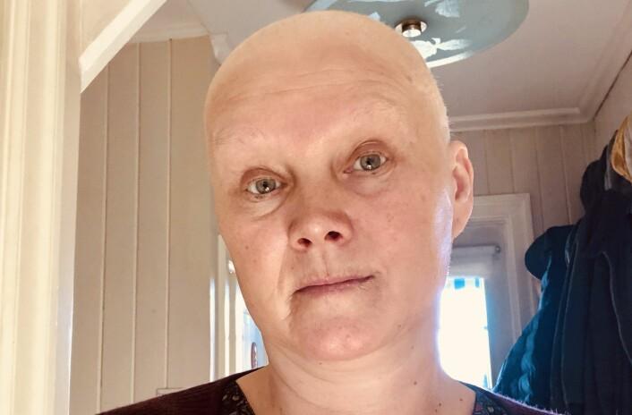 CELLEGIFT: Eli Strand har vært i gjennom sterke behandlinger, noe hun kjenner både psykisk og fysisk. Hun opplevde også å miste håret.